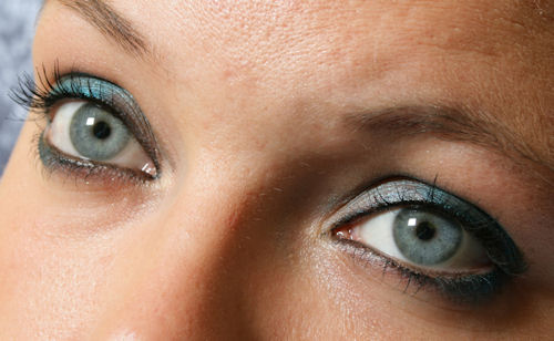 blue eyes and fair complexion are risk factors for macular degeneration
