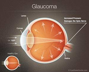 Glaucoma in Saugeen Shores, Port Elgin, Sauble Beach, Ontario