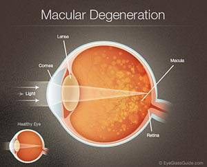 Retina scan can detect macular degeneration, Sugar Land, TX