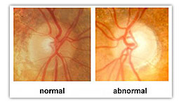 Glaucoma Illustration from your NW Calgary eye doctor