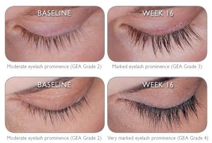 704ea491435 South San Jose Eye Doctor Offers Latisse For Longer Lashes