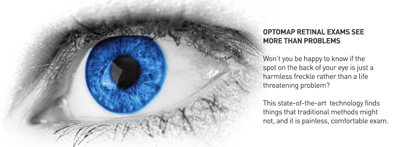 Optomap eye exam detects eye diseases earlier for better prognosis (illustration of eye, up close)